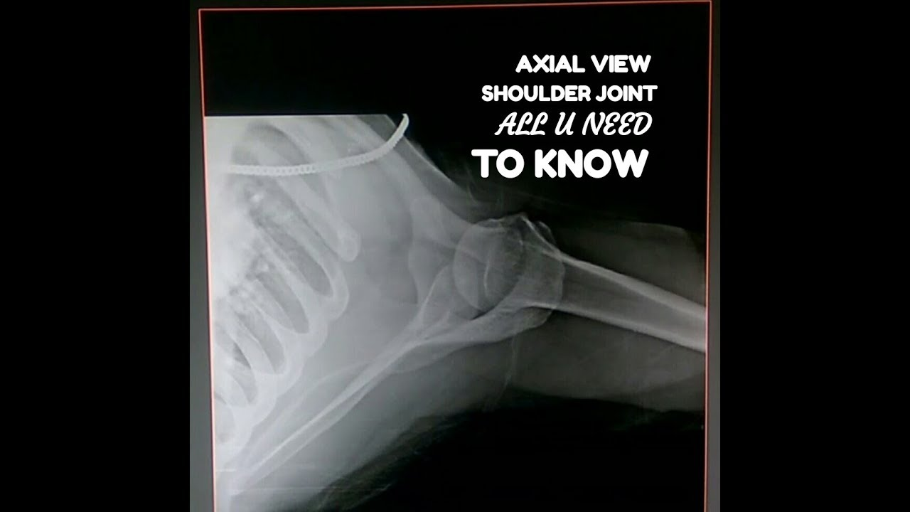 SHOULDER JOINT AXIAL VIEW, ANATOMY & PHYSIOLOGY PART- 103 - YouTube