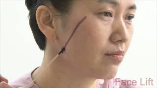 [Eng.Ver.] Korea plastic surgery: Anti-Aging - Face & Neck Lift