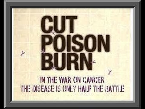 How Cancer Industry Started   Cut Poison  Burn Protocol