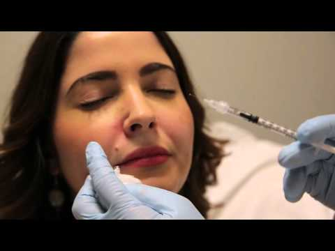Botulinum toxin injection for gummy smile
