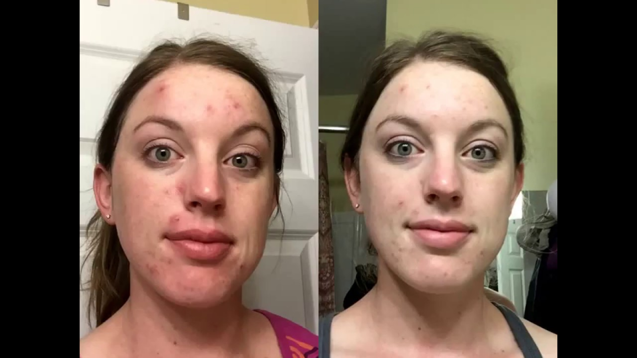 Neutrogena Oil Free Acne Wash Cream Cleanser Micro Clear Review