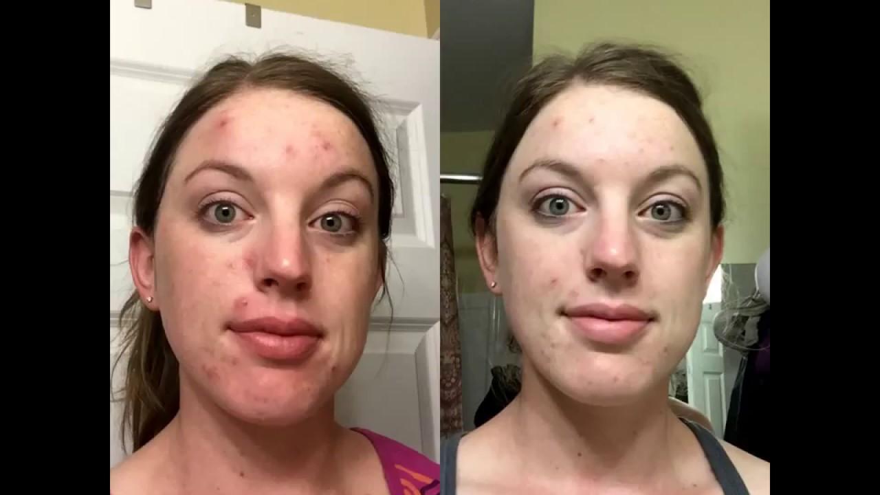 Neutrogena Oil-Free Acne Wash Cream Cleanser Micro Clear ...
