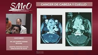 CÁNCER DE CABEZA Y CUELLO-CASOS CLÍNICOS  2019