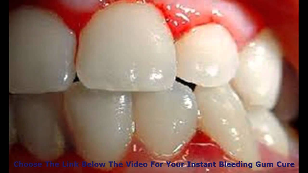 Stop Bleeding Gums in Just A Few Days? Proven Bleeding Gums Remedy sore  bleeding gums