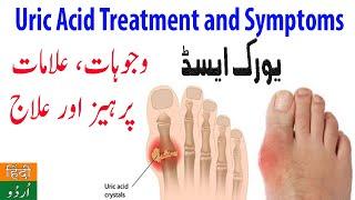 Uric Acid Ka Ilaj | Uric Acid Treatment and Symptoms in Urdu | Uric Acid Hindi Me Jankari