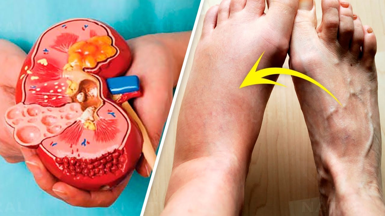7 Early Signs of Kidney Failure to Watch For