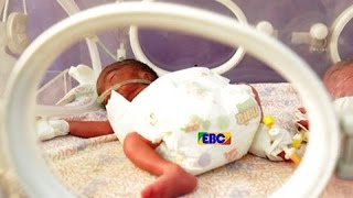 A 30 years old mom gives birth to sextuplets in Addis Ababa - Ethiopia