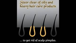 Pimples on the Scalp Causes and Treatment