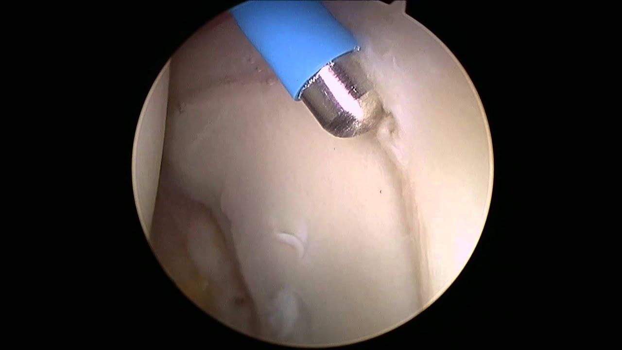 Hip Arthroscopy for Labral Tears - Debridement and Repair - YouTube