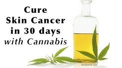 David Triplett Cures His Skin Cancer With Cannabis Oil