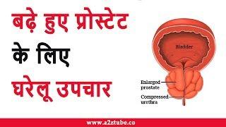 Home Remedies for Enlarged Prostate in Hindi | बढ़े हुए प्रोस्टेट के लिए घरेलू उपचार