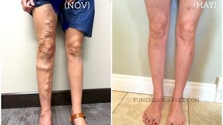 One of Jordan Page, FunCheapOrFree's most viewed videos: My Varicose Vein Story - All Your Questions Answered!