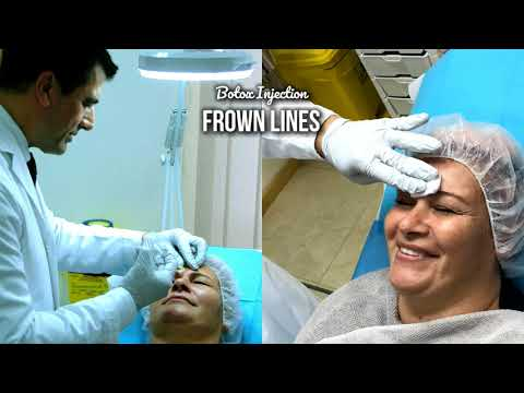 Botox Injection in Frown Lines - with Dr Allen Rezai
