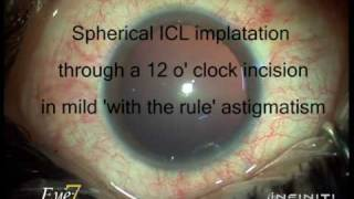 ICL spherical in mild WTR astigmatism