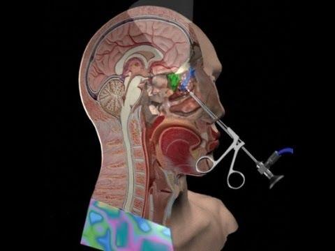 Sinus Surgery - Is it Worth it? - YouTube