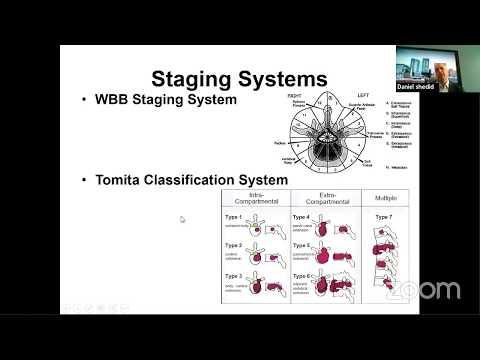 Download en bloc resection of spinal tumors - pr daniel shedid