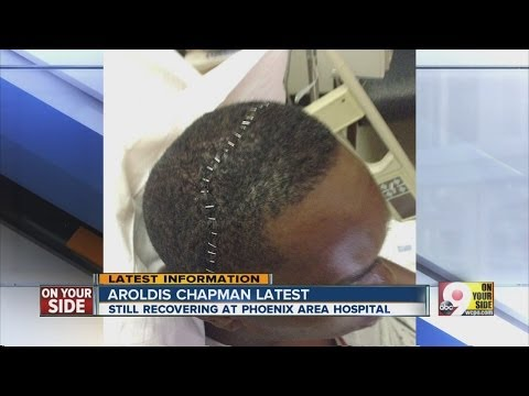 Update on condition of Aroldis Chapman