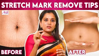 Dr Deepa Ganesh| Prevent Stretch Mark| Post Pregnancy