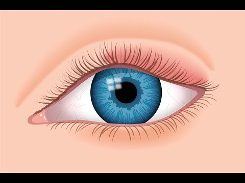 Top 6 Causes of Swollen Eyelids + How to Treat