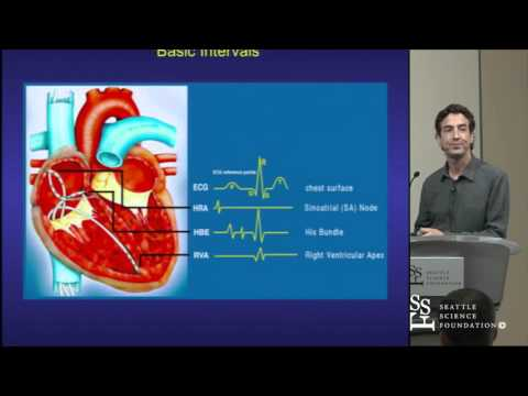 Basics of EP Testing and Ablation by Adam Zivin, M.D.