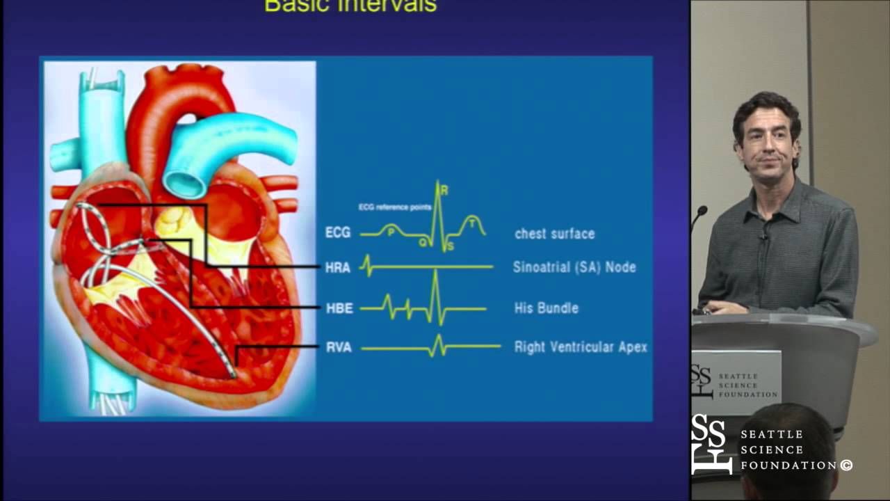 FAQ: Electrophysiology Study and Catheter Ablation ...