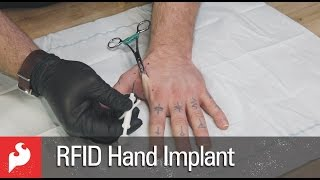 RFID Hand Implant with SparkFun!(More Information: https://www.sparkfun.com/news/1998 HEADS UP! The video below includes a section demonstrating the implant procedure for my NFC tag., 2015-12-23T16:51:52.000Z)