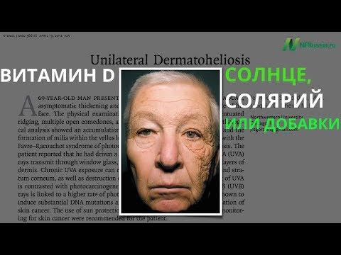 Плюсы и минусы Солнца как источника витамина D. Загар как наркотик. Коэнзим Q10. Рак кожи. Солярии
