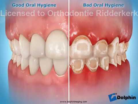 Orthodontics - Wikipedia