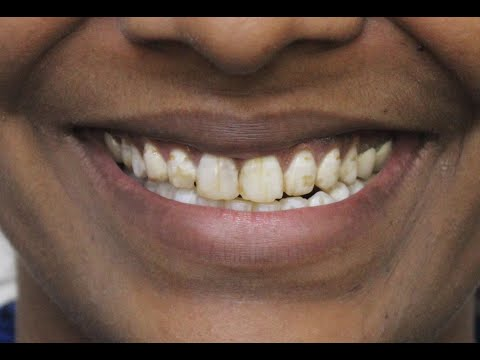 Do you hide your teeth due to Fluorosis?| Find out the best treatment by best cosmetic dentist. View