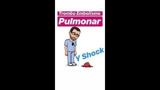 9 icd tromboembolismo pulmonar