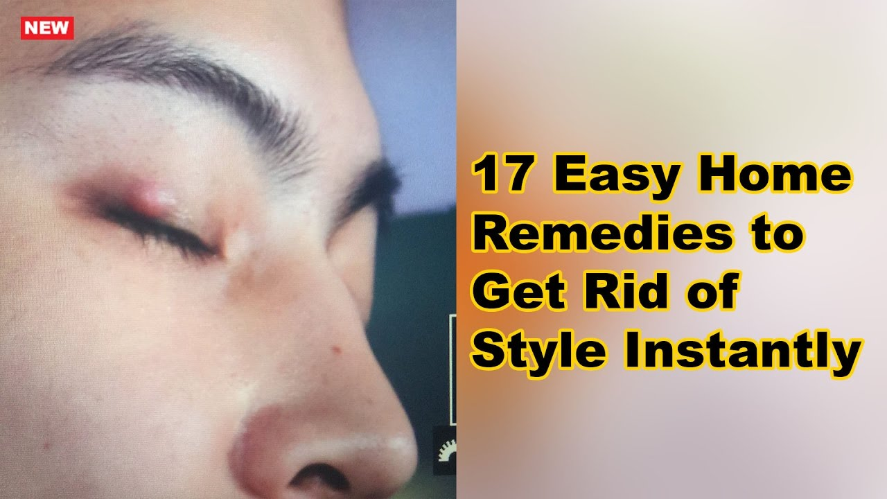 17 Easy Home Remedies To Get Rid Of Stye Instantly Natural Home