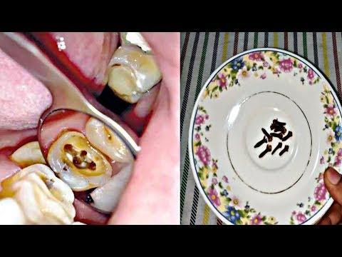 cara-mengobati-sakit-gigi-hingga-bau-mulut-secara-alami-||-slb_official