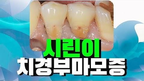 치아시림 시린이 치경부마모증(치아파임) GI/레진치료