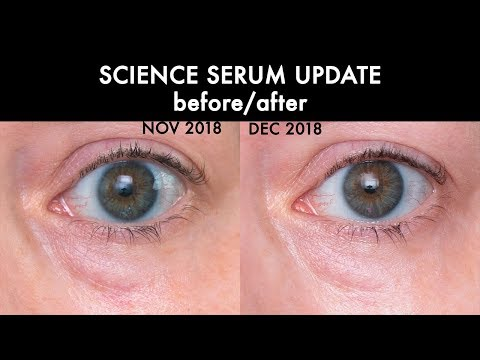 BEFORE/AFTER UPDATE | Science Serum Bright & Tight, Tight