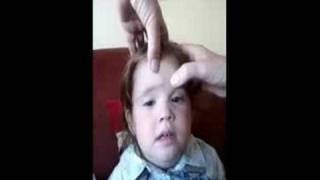 Headache and Common Flu-Baby Massages ( Xiau er tui na massages.)