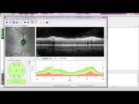 OCT Video 3 – Glaucoma