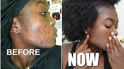 hqdefault - Black Skin Acne Care Products