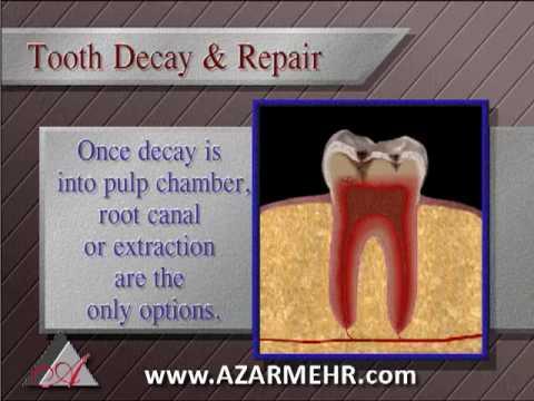 Dental Tooth Fillings Healthy teeth Los Angeles Dental Office