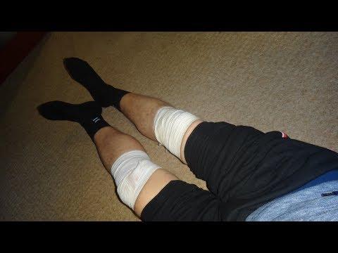 Болят колени и суставы что делать? Артроз и артрит лечение. Копеечное сильнейшее средство