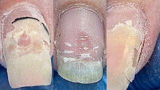 О боже 😱 Шикарное преображение😍 Градиент гелем / Наращивание ногтей