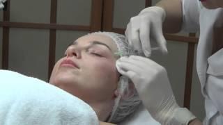 Новый препарат «Mesoeye» для коррекции проблем кожи вокруг глаз