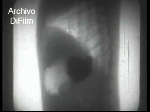 DiFilm - X-rays - A cultural UFA film of 1937