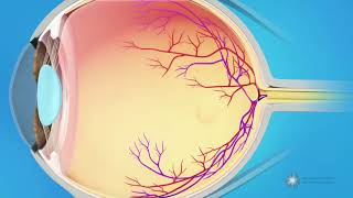 What causes a macular pucker?