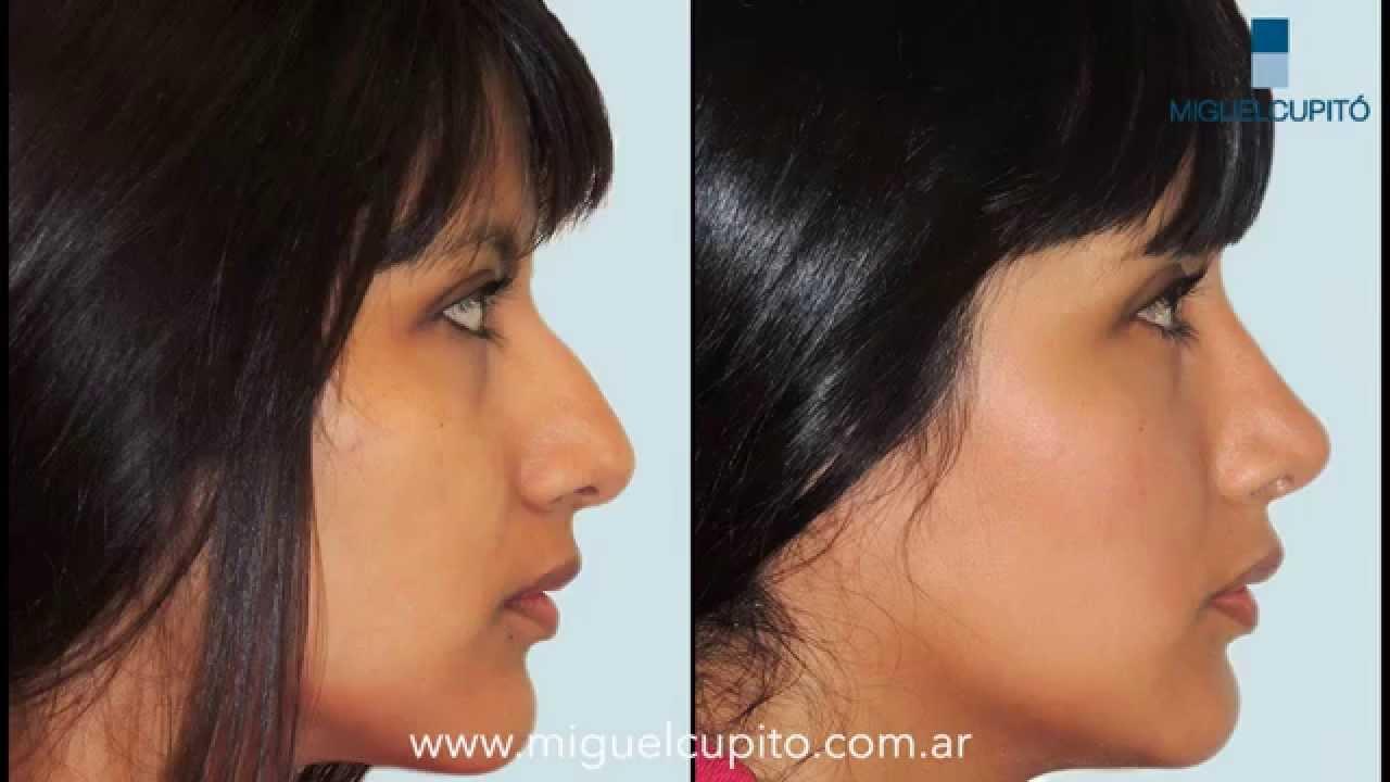 Rinoplastia Antes Y Despues Cirugía De Nariz Dr Miguel Cupitó Youtube