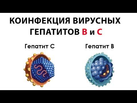Коинфекция вирусных  гепатитов B и С