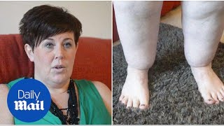 Lipoedema means Claire Tickle's legs weigh 10 stone - Daily Mail