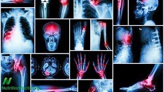 Následky vystavení nízkým dávkám olova u dospělých