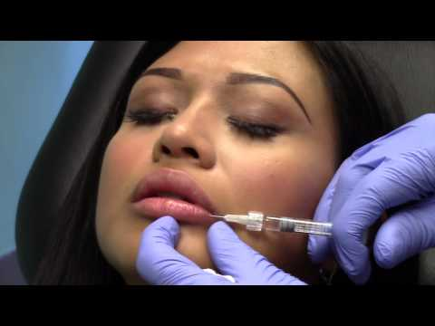 Subtle Natural Lip Enhancement with Restylane Chevy Chase Maryland