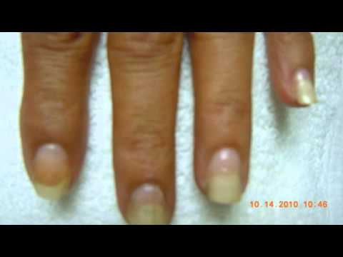 Nail Fungus Laser Treatment-Before-After-Pictures