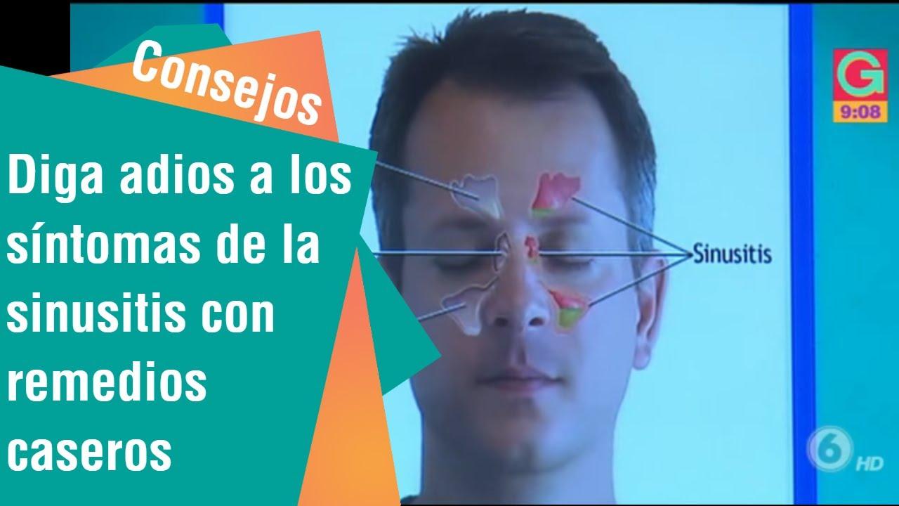 Diga Adiós A Los Síntomas De La Sinusitis Con Remedios Caseros Consejos Para Usted Youtube